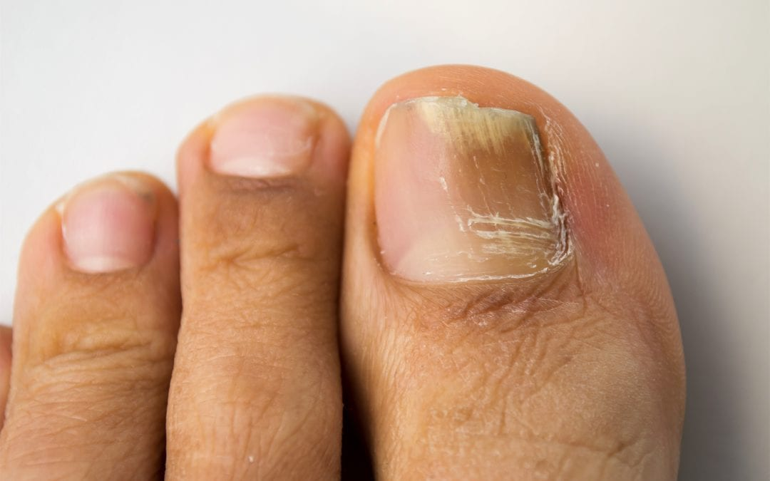Natural treatment for fungal nail infections
