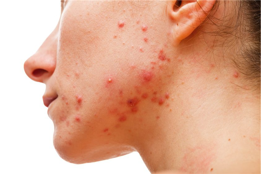 woman with jawline acne naturoapth skin conditions