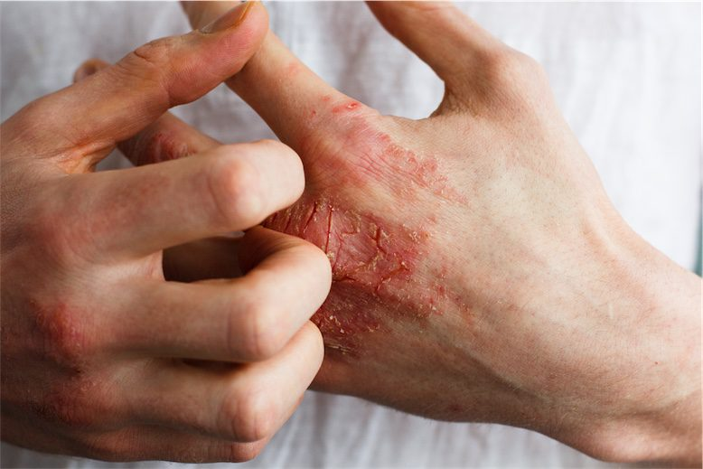 person scratching hand eczema naturopath skin conditions