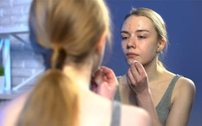 How to avoid post-Pill acne