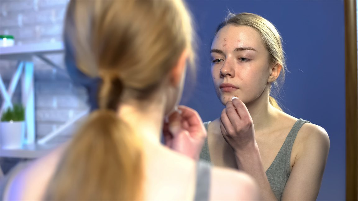 post pill acne girl in mirror, Naturopath for acne